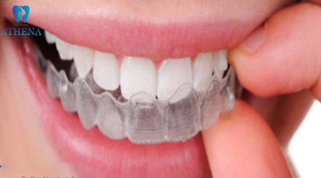 chỉnh nha trong suốt Invisalign (2)