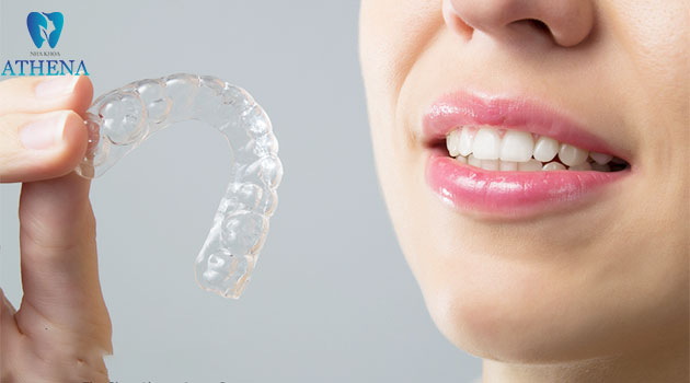chỉnh nha trong suốt Invisalign